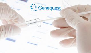 自宅で簡単!遺伝子解析 Genequest(ジーンクエスト)のセールをチェック